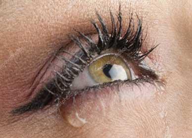 cirurgia-de-vias-lacrimais-02