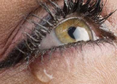 cirurgia-de-vias-lacrimais-foco
