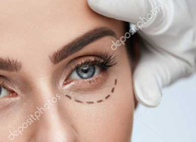 plastica-ocula-foco